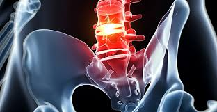 Scientific Specialist: Lumbar Herniated Discs And Sciatica
