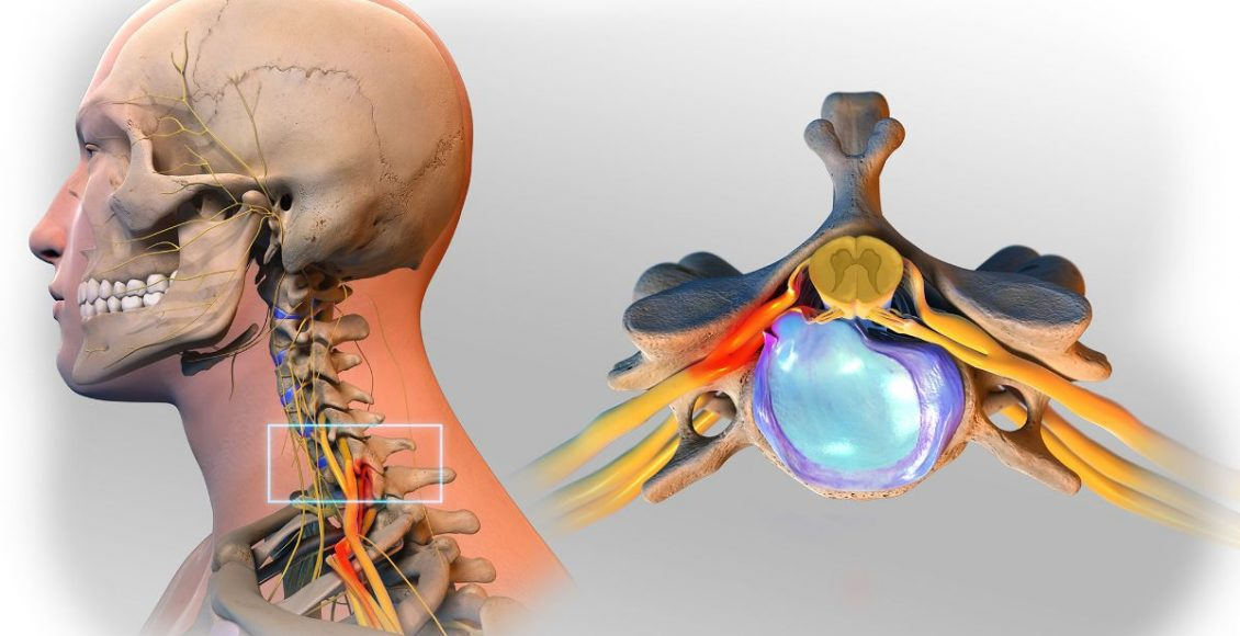 Progression and Diagnosis of Herniated Discs Scientific Specialist - El Paso Chiropractor
