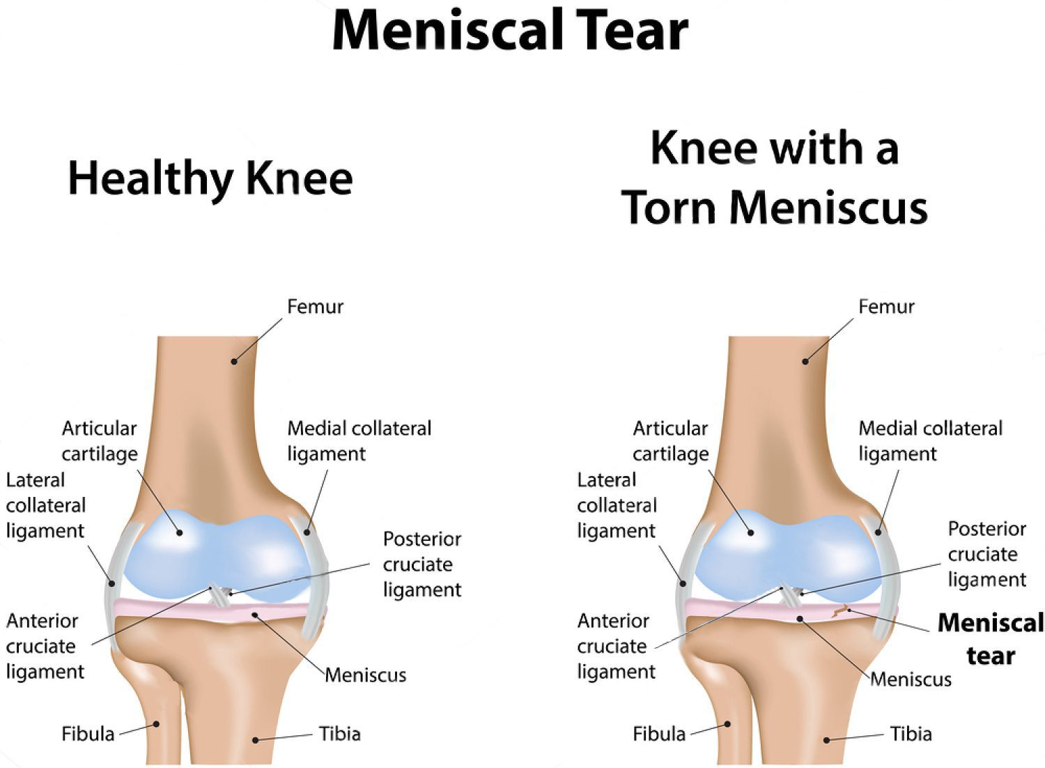 The meniscus a scientific perspective chiropractic scientists el paso pooptronica