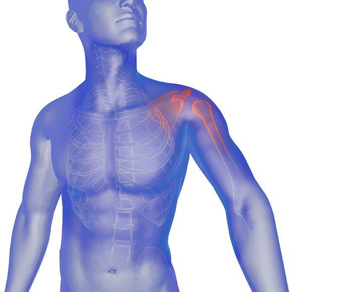 frozen shoulder syndrome chiropractic treatment, el paso tx.