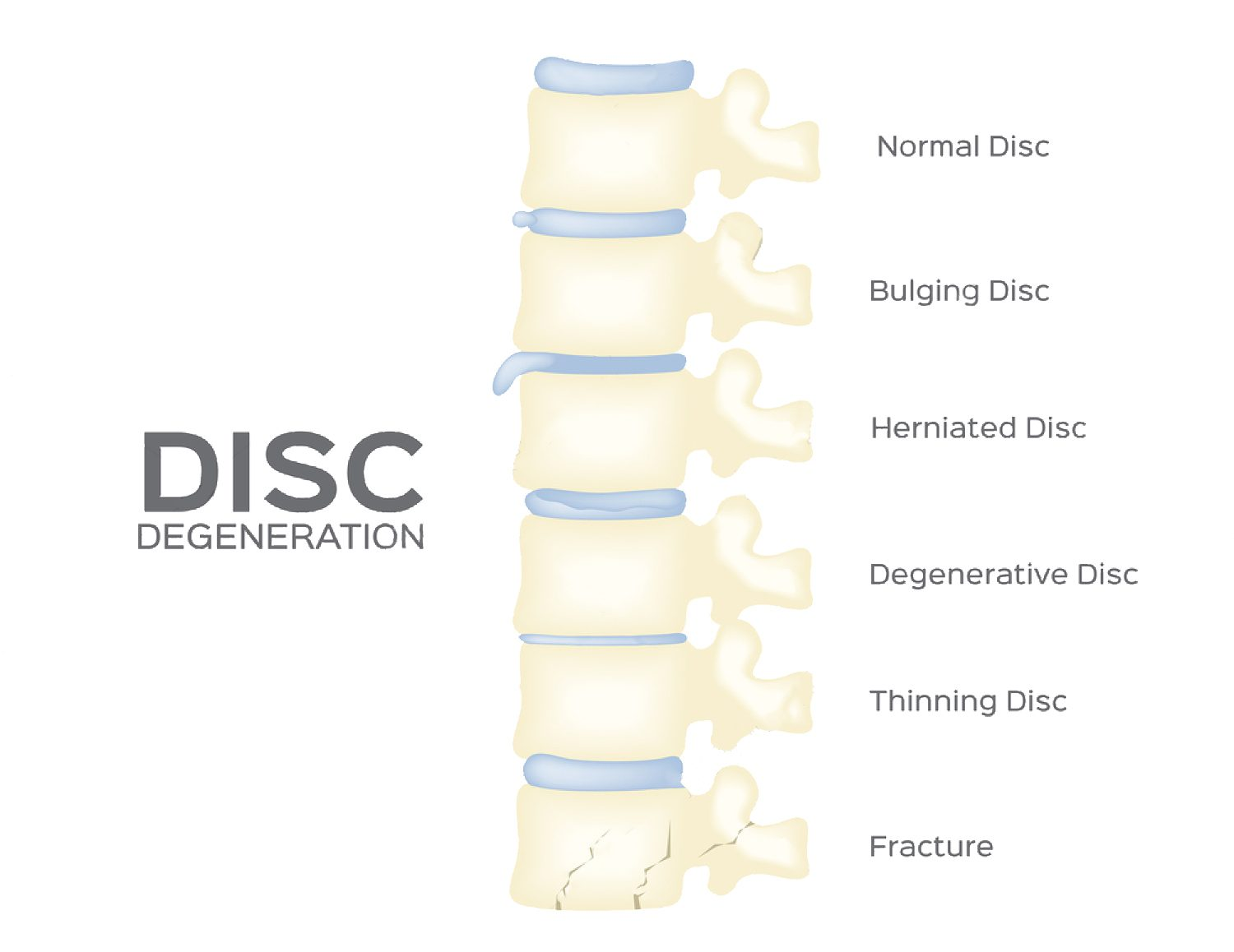 chiropractor spine-disc-degeneration-vector-back-bone-organ-anatomy