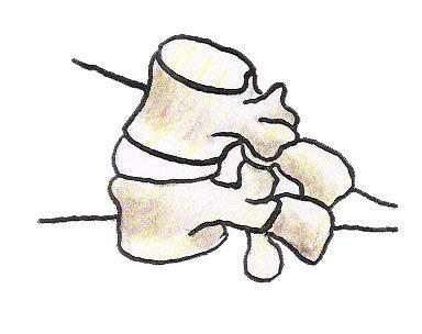травмы хлыстовых травм объясняются