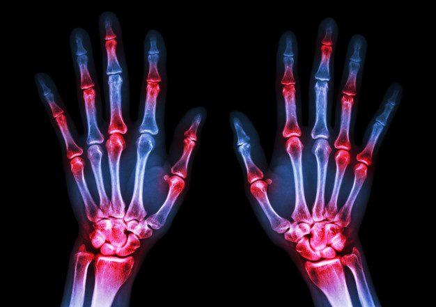 Diagnosis and Management of Rheumatoid Arthritis   El Paso, TX Chiropractor