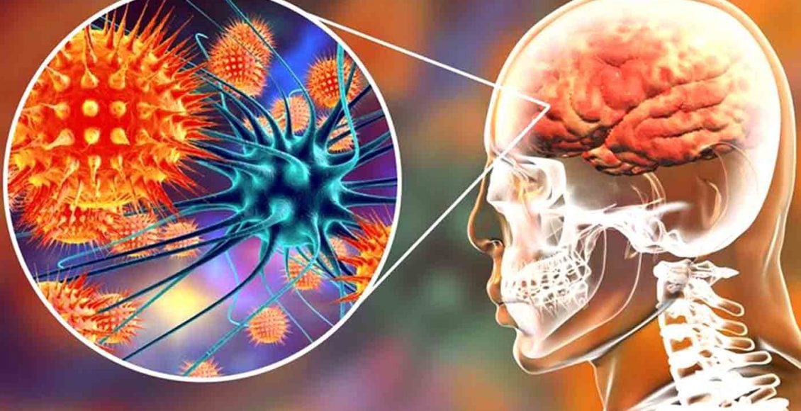 Functional Neurology: Understanding Autoimmune Brain Disease   El Paso, TX Chiropractor