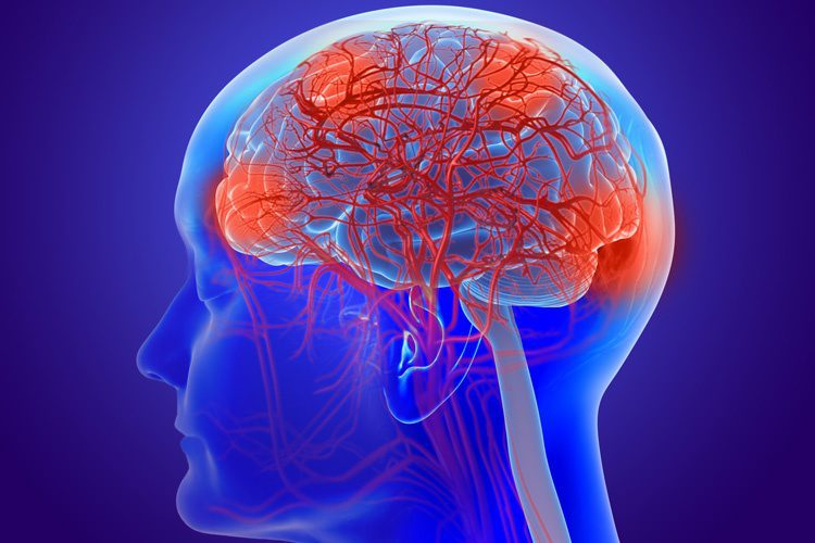 Functional Neurology: What is a Leaky Brain? | El Paso, TX Chiropractor